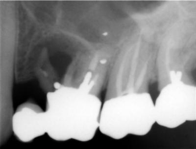 Upper left six molar with broken root