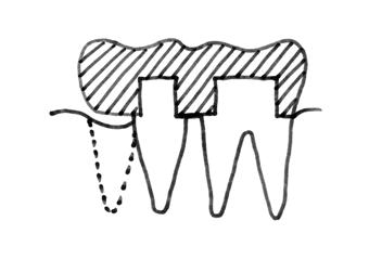 diagram of lower-left teeth