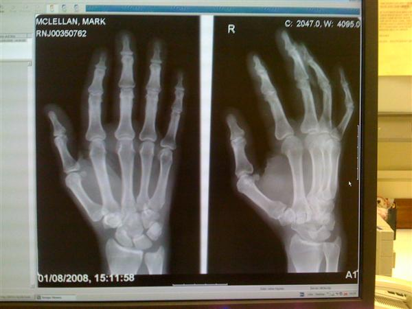 xray of my right hand
